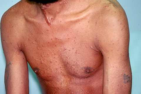 Histoplasmosis-3