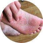 Микоз кожи лица лечение